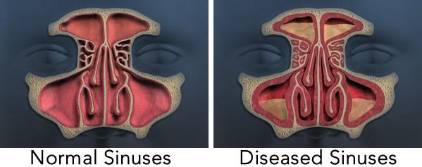 Swollen Turbinates Treatments Natural